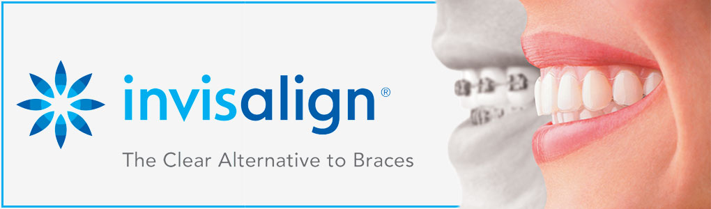 Invisalign Costs & Prices   Oakland County MI   Petrous Ortho