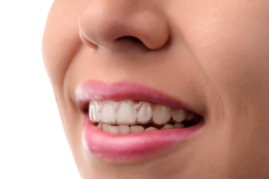 How To Make Your Invisalign Treatment Quick and Easy