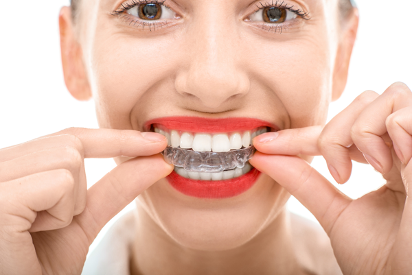 invisalign sterling heights mi